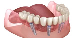 عکس با کیفیت نقاشی دهان با کاشت ایمپلنت دندان های شماره یک ، دو و پنج ویژه استفاده در امور تبلیغاتی و تجاری طراحی کاتالوگ ، بروشور و تراکت با موضوع کاشت ایمپلنت دندان ، درمان و پر کردن جای خالی دندان ،کاشت دندان شامل کاشتن دندان به استخوان فک