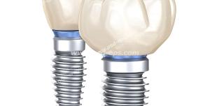 عکس با کیفیت پروتز ایمپلنت دندان های چهار و شش ویژه استفاده در امور تبلیغاتی و تجاری طراحی کاتالوگ ، بروشور و تراکت با موضوع کاشت ایمپلنت دندان ، درمان و پر کردن جای خالی دندان ،کاشت دندان شامل کاشتن دندان به استخوان فک