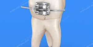 عکس با کیفیت دندان با براکت و سیم کشی ارتودنسی روی زمینه آبی ویژه استفاده در امور تبلیغاتی و تجاری طراحی کاتالوگ ، بروشور و تراکت با موضوع درمان ارتودنسی با براکت و سیم کشی دندان