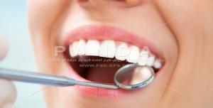عکس و تصویر با کیفیت بالا و زیبای دندان و طرح لبخند و دندانپزشکی