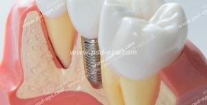 عکس با کیفیت ماکت دندان و لثه ها با دندانی کاشته شده ( ایمپلنت )