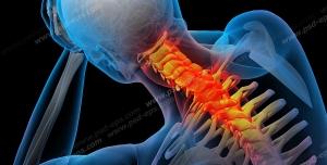 آناتومی اسکلت بدن انسان و درد و دیسک در قسمت مهره های گردن