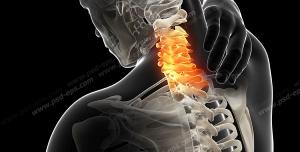 عکس با کیفیت آناتومی ستون فقرات و درد و آرتروز در قسمت مهره های گردن