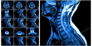عکس با کیفیت آزمایش MRI از گردن و مهره های ستون فقرات از بیمار مبتلا به دیسک گردن