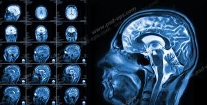 عکس با کیفیت آزمایش MRI و تصویر برداری از داخل سر و مغز و ناهنجاری های پیش آمده درون مغز