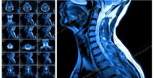 عکس با کیفیت آزمایش MRI از گردن به همراه ستون فقرات و مهره های آن جهت تشخیص دیسک گردن