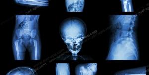 عکس با کیفیت آزمایش MRI و پرتونگاری از قسمت ها و اعضای بدن کودک ( سر ، دست ، پا ، شکم ، لگن ، گردن ، زانو و آرنج )