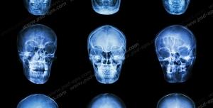 عکس با کیفیت آزمایش MRI و تصویر برداری از مجموعه ای از جمجمه های سر
