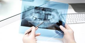 عکس با کیفیت تبلیغاتی دکتر در حال برسی عکس رادیولوژی دندان