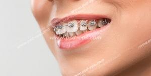 عکس با کیفیت تبلیغاتی زن لبخند بر لب و دندان های ارتودنسی شده